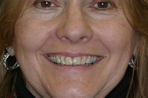 Woman with disoclored teeth