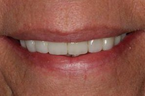 White repaire healthy front teeth