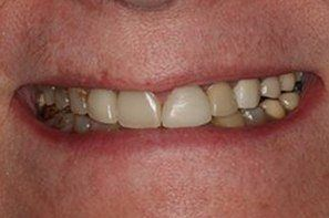 Damaged and decayed tooth
