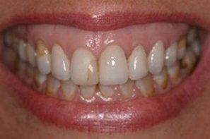 Woman with damaged front tooth