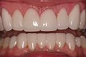 Closeup of repaired front teeth