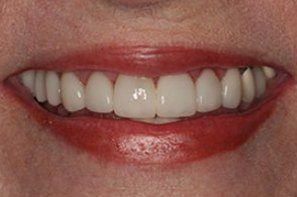 Womanw with fully repaired front teeth