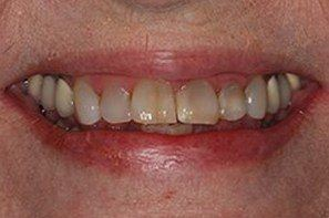 Woman with damged and discolored front teeth