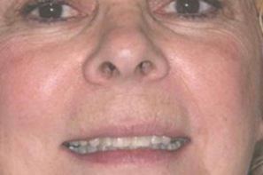 Woman with discolored teeth