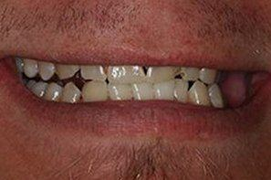 Man with crooked discolored teeth