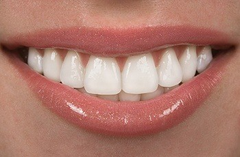 Closeup of bright white smile