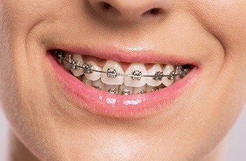 Closeup of teeth with braces