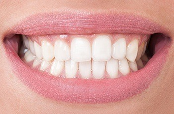 Closeup of healthy white smile