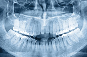 Panoramic X-ray showing the teeth, jaws and sinuses