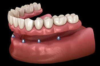 Implant denture illustration