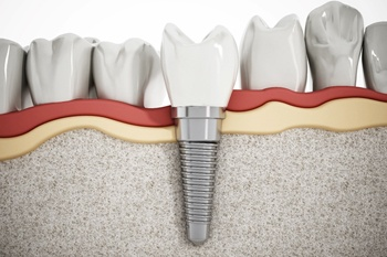 rendering of dental implant