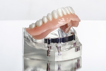 Image of a lower denture being attached to implants