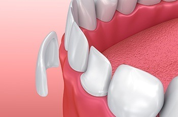 Animation of porcelin veneer placement