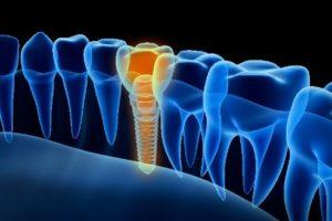 digital image of dental implants