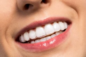 woman smiling wearing clear braces