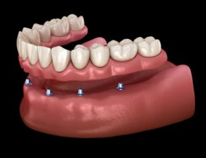 Digital image of a lower implant denture