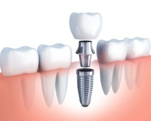 dental implant in Columbia