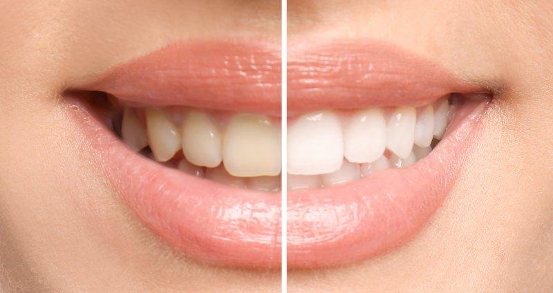 Teeth whitening in Columbia