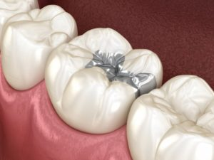 Replace metal fillings in diagram with tooth-colored ones