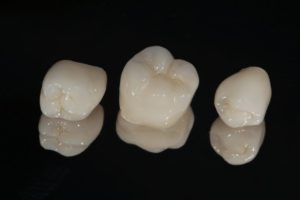 three dental crowns in Columbia against black background