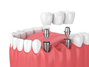 dental bridge supported by two dental implants in Columbia